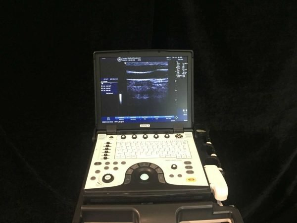 LOGIQ-e-Portable-Ultrasound-3